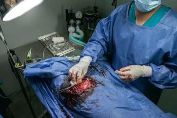 opération de tumeur